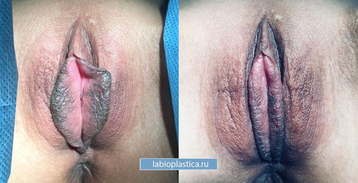 """Уменьшение малых половых губ - фото """"до / после"""""""
