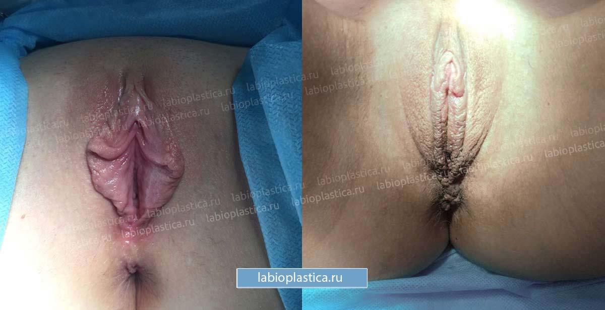 Сшивание половых губ медики видео попки девак пацан