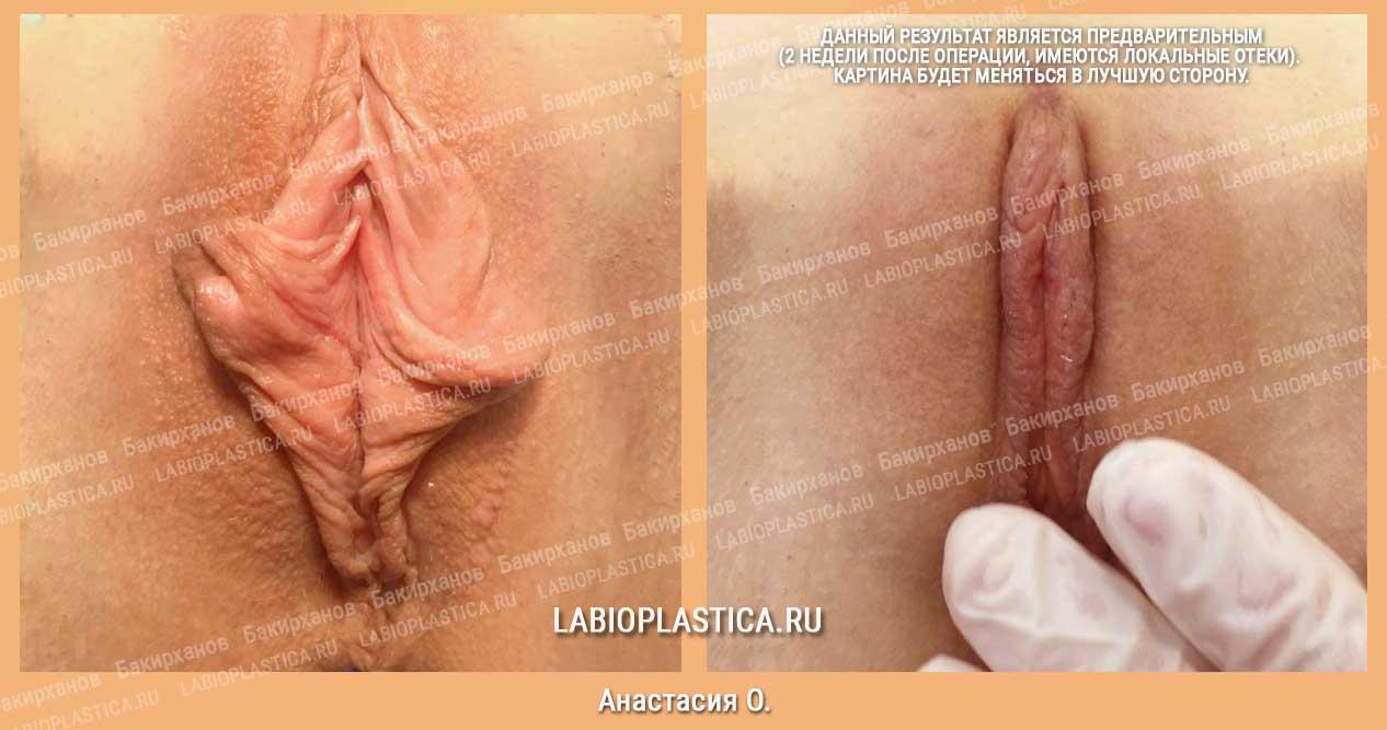 Лабиопластика: фото «до / после»